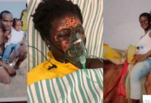 Man who bathed his wife with acid jailed for 10 years 1